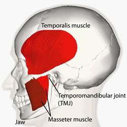 Side view of human skull with Temporalis and Masseter muscles labeled